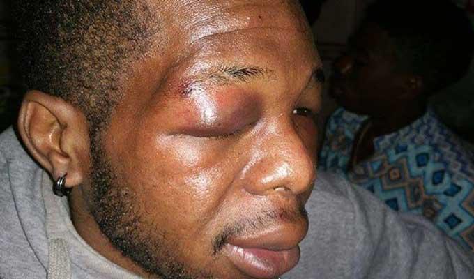 camerounais-raciste-acte